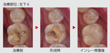 cerec_in